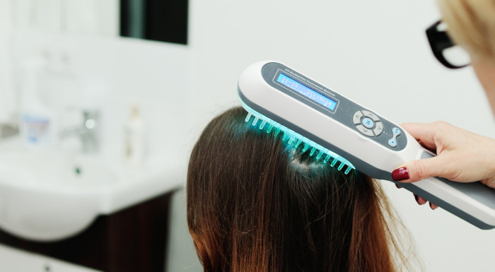Psoriáza vo vlasoch a fototerapia